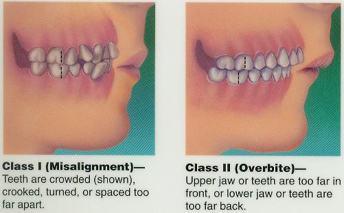Orthodonics Page Naperville Dentist J A Haselhorst For